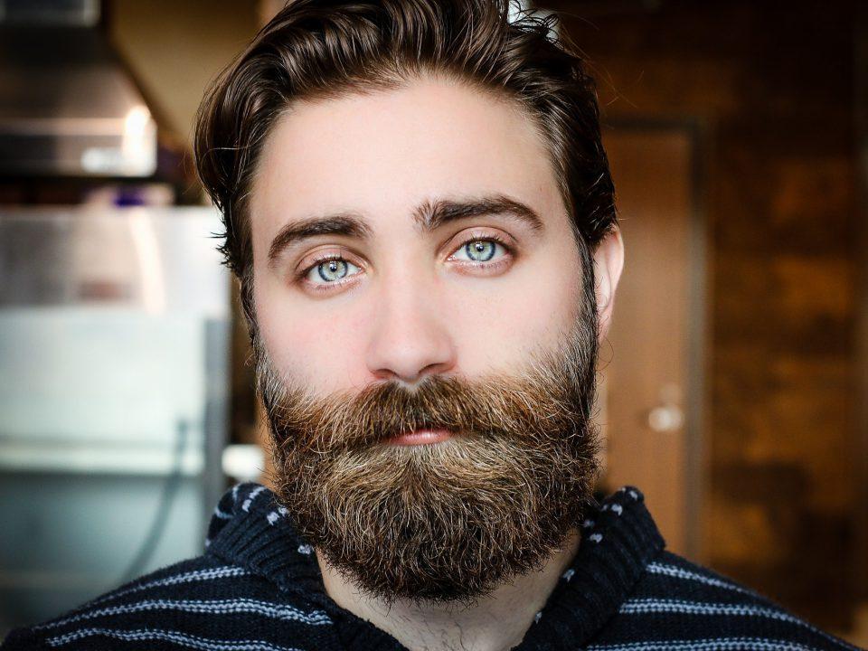 transplante capilar de barba