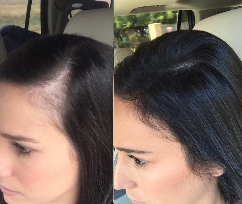 alopecia-injerto capilar